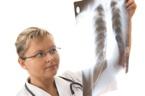 Médecin regardant une radiographie